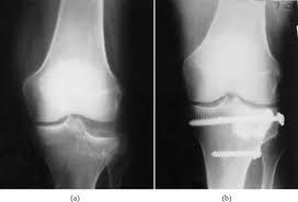 a) depressed articular surface b) reconstruction of articular surface by Calcium-Phosphate-Cement augmentation and fixation with screws
