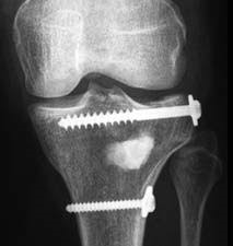 a-p radiography after implementation of bone substitute material and screw fixation